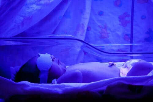 Жовтяниця у новонароджених: що потрібно знати