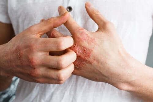 Що таке атопічний дерматит?