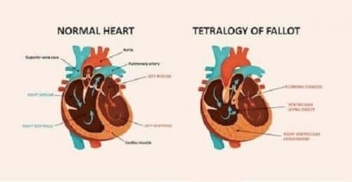 що таке вроджені вади серця