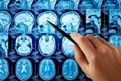 як лікують метастази в мозку