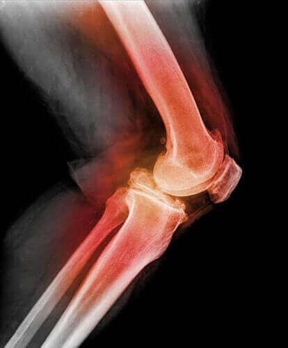 Дізнайтеся все про вивих колінної чашечки