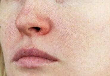 Купероз: характеристики захворювання та лікування