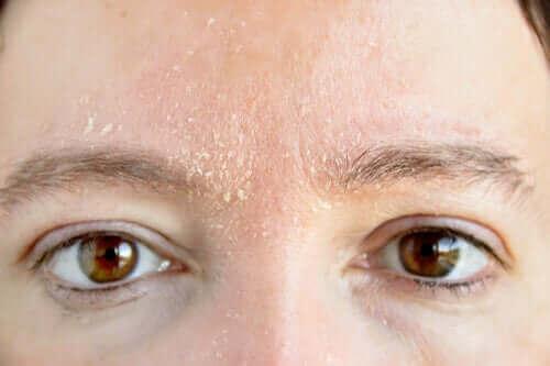 стан шкіри при куперозі